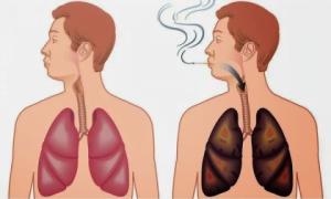 enfermedades del cigarrillo