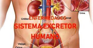 enfermedades del sistema excretor humano